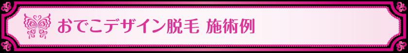 Vivienne_おでこデザイン施術例_前髪のクセ,生え際,狭いおでこ,富士額,悩み解消,viviennewax,ヴィヴィアン,大阪