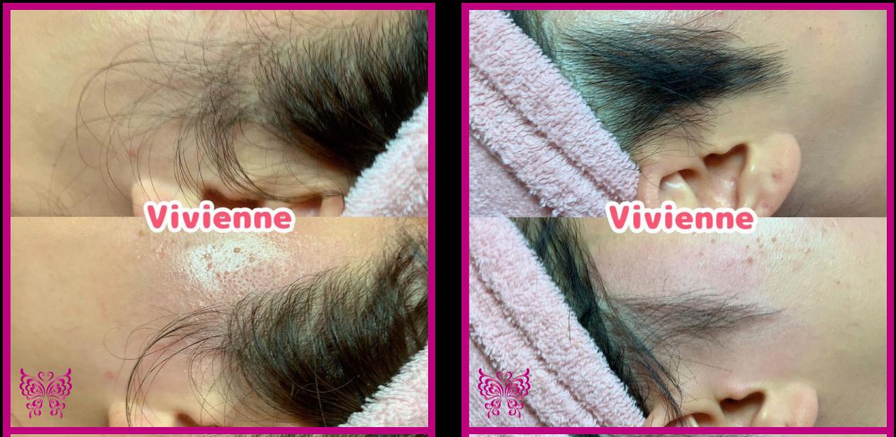 Vivienne_もみあげデザインワックス_もみあげ脱毛,施術例,もみあげを整える,もみあげを細くする,もみあげをキレイに,viviennewax,ヴィヴィアン,大阪